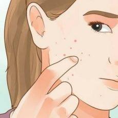 Si votre peau du visage est comme ceci, cela peut indiquer une perturbation hormonale