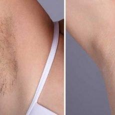 Un moyen facile d'enlever les poils sous le bras